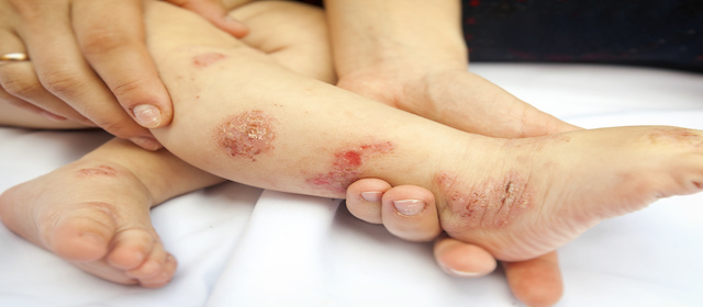 Dupilumab Shows Positive Results in Children with Severe Atopic Dermatitis