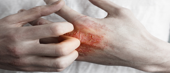 Trending News Today: Patients with Psoriasis May Be at Elevated Risk of Cancer