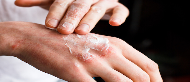 Patients Frequently Use Complementary, Alternative Medicines for Psoriasis When Other Therapies Fail